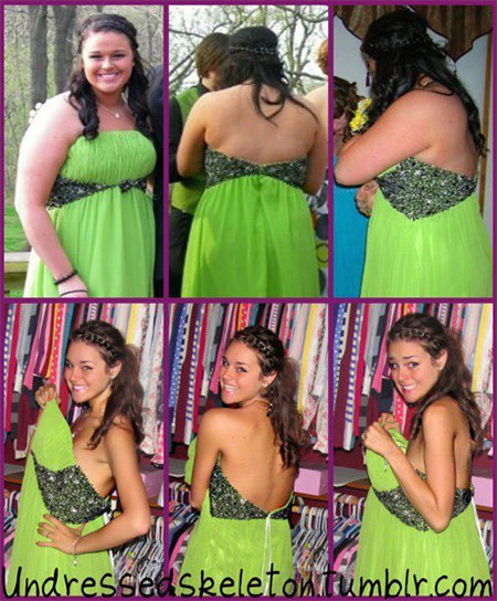 before-after-dress
